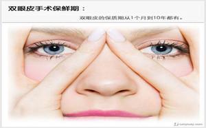 合肥壹加壹美容医院的韩式三点双眼皮恢复期要多长时间?