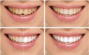 牙齿二次修复应选种植牙