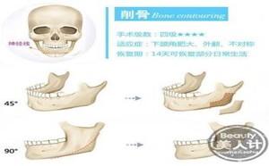 科普:削骨类整形主要过程