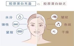 北京京美医疗美容诊所的胶原蛋白美容功效怎么样?