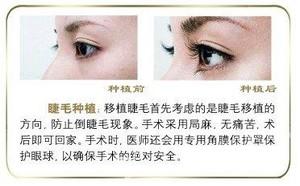 北京韩啸医疗美容门诊部【自体睫毛种植】效果好吗?