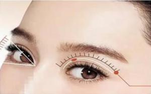 清华大学玉泉医院整形美容的双眼皮手术需要多少钱?