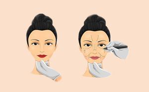 大同逆时光医学美容整形门诊部的爱贝芙填充鼻唇沟效果怎么样呢?